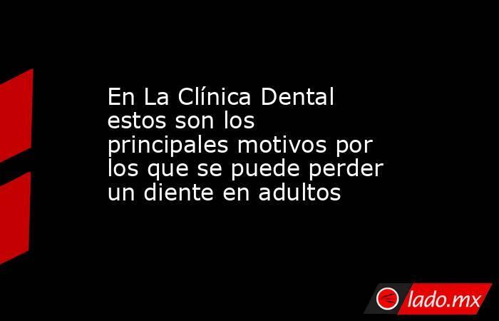 En La Clínica Dental estos son los principales motivos por los que se puede perder un diente en adultos. Noticias en tiempo real