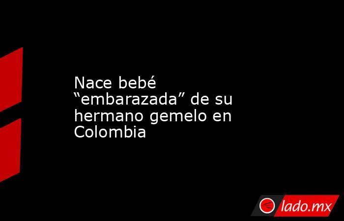 """Nace bebé """"embarazada"""" de su hermano gemelo en Colombia. Noticias en tiempo real"""