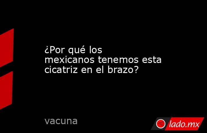 ¿Por qué los mexicanos tenemos esta cicatriz en el brazo?. Noticias en tiempo real