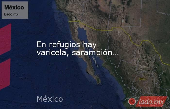 En refugios hay varicela, sarampión…. Noticias en tiempo real