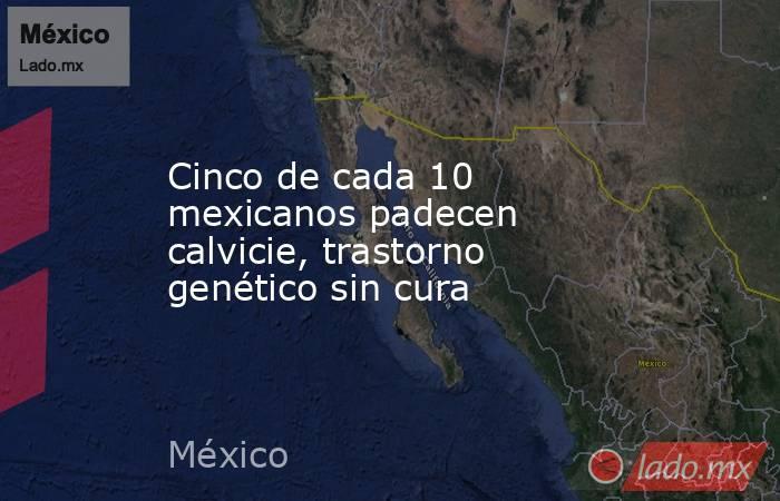 Cinco de cada 10 mexicanos padecen calvicie, trastorno genético sin cura. Noticias en tiempo real