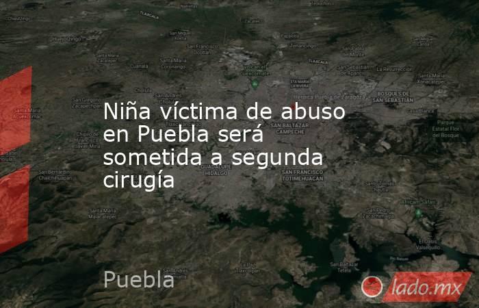 Niña víctima de abuso en Puebla será sometida a segunda cirugía. Noticias en tiempo real
