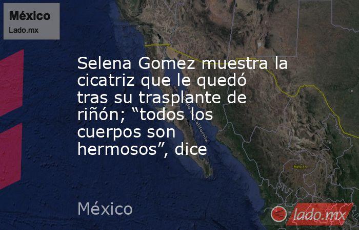 """Selena Gomez muestra la cicatriz que le quedó tras su trasplante de riñón; """"todos los cuerpos son hermosos"""", dice. Noticias en tiempo real"""