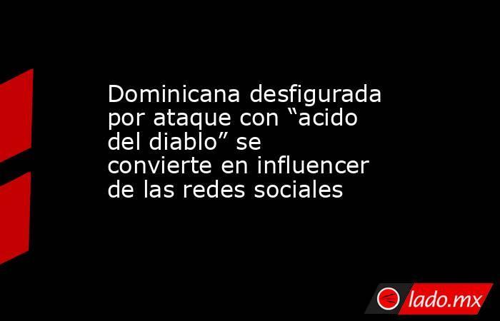 """Dominicana desfigurada por ataque con """"acido del diablo"""" se convierte en influencer de las redes sociales. Noticias en tiempo real"""