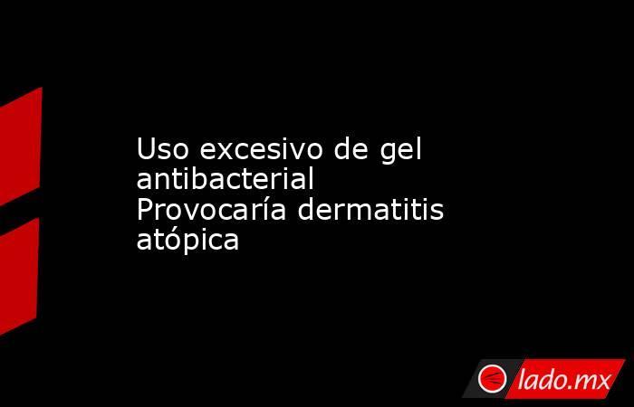 Uso excesivo de gel antibacterial Provocaría dermatitis atópica. Noticias en tiempo real