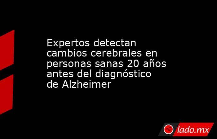 Expertos detectan cambios cerebrales en personas sanas 20 años antes del diagnóstico de Alzheimer. Noticias en tiempo real
