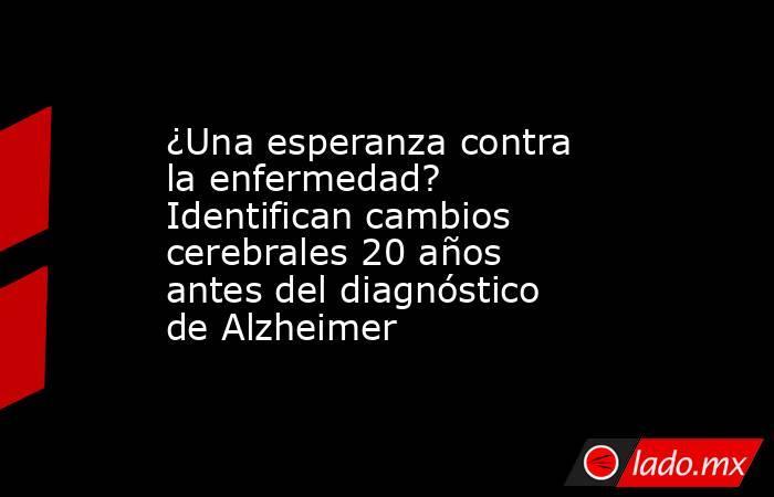¿Una esperanza contra la enfermedad? Identifican cambios cerebrales 20 años antes del diagnóstico de Alzheimer. Noticias en tiempo real