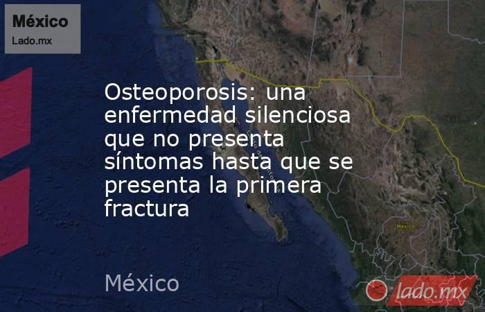 Osteoporosis: una enfermedad silenciosa que no presenta síntomas hasta que se presenta la primera fractura. Noticias en tiempo real